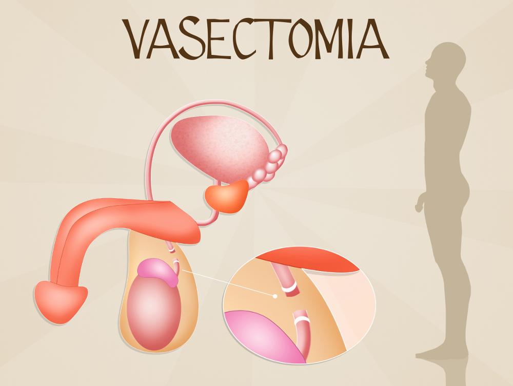 Vasectomía en DF