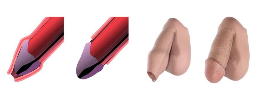 Circuncisión en DF
