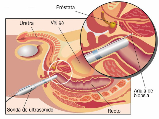 biopsia de prostata en df