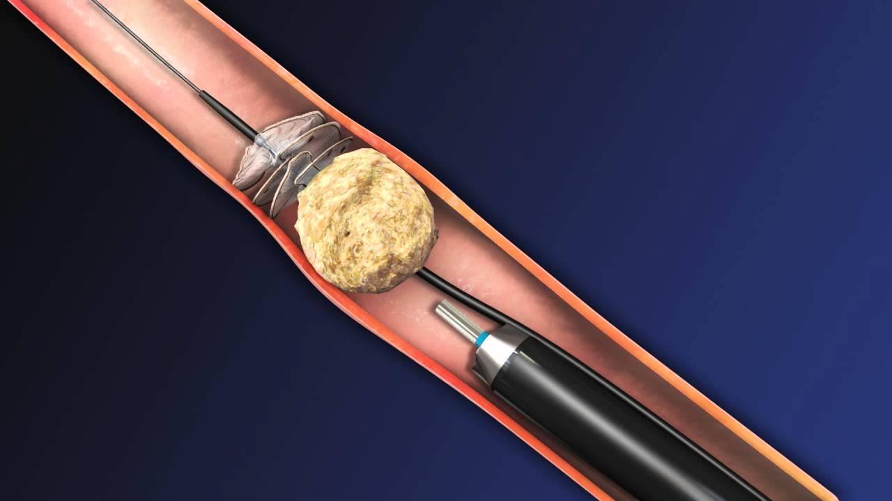 Cirugía laser de piedras en los riñones