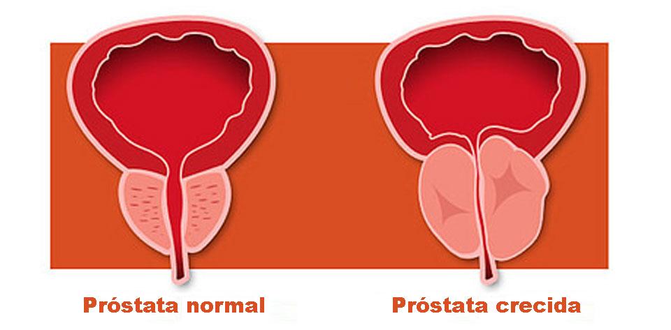 prostatico_01-2